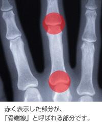 rentogen